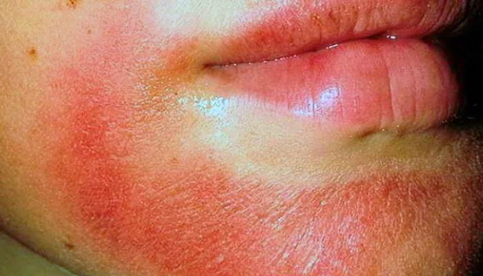 Атопический дерматит и армия берут ли в армию с атопическим дерматитом