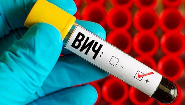 Берут ли в армию с ВИЧ инфекцией в 2019 году